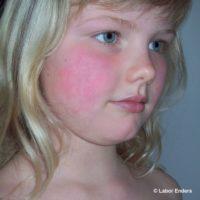 Parvovirus B19-Infektion (Ringelröteln) in der Schwangerschaft